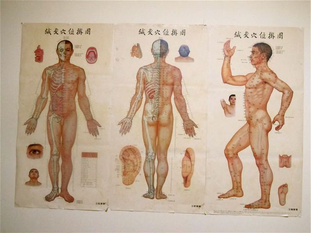 Traditional Chinese Medicine in China Acupuncture