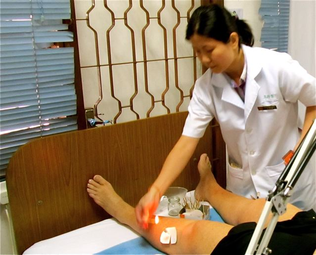 TCM Traditional Chinese Medicine - lighting moxabustion on acupuncture needle in Asia